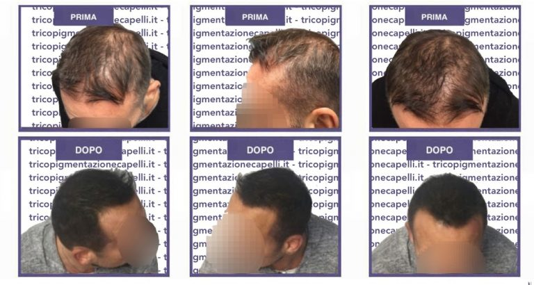 Cosa è la tricopigmentazione definitiva